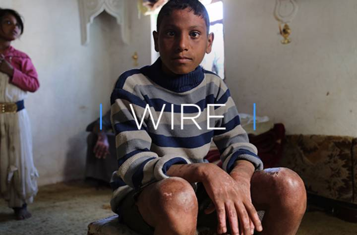 WIRE: The Truth Behind The Humanitarian Crisis In Yemen And The Lives It's Ruined
