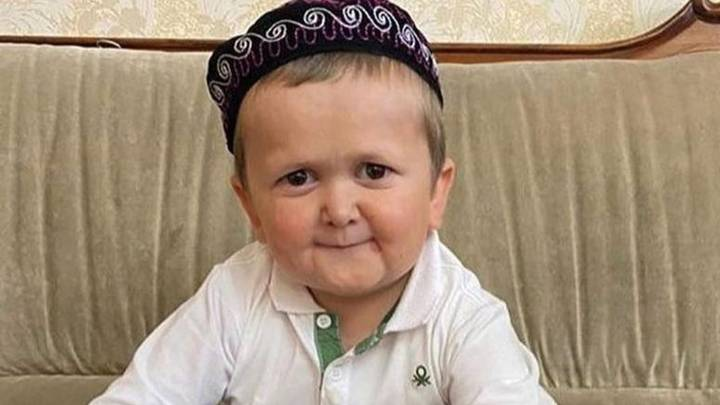 Doctor Explains Hasbulla's Rare Genetic Condition That Makes Him Look Young And Old