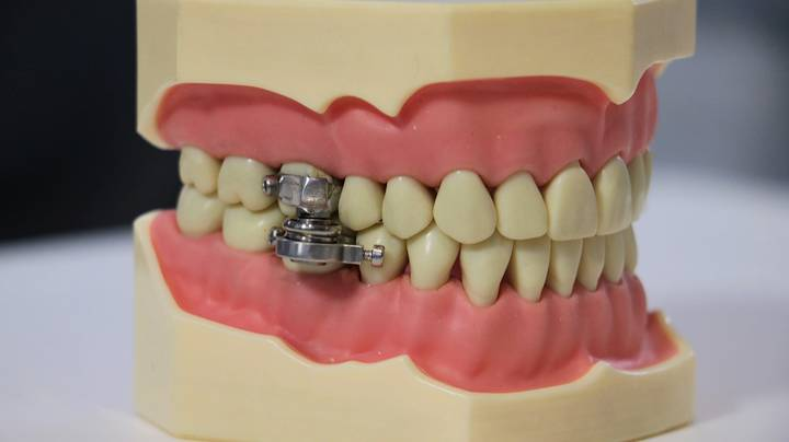 Magnetic Device That Locks Jaw Almost Fully Shut Created To Fight Obesity