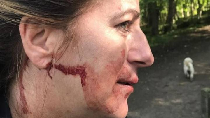 Dog Walker Punched Unconscious By Stranger For Having Dogs Off Lead