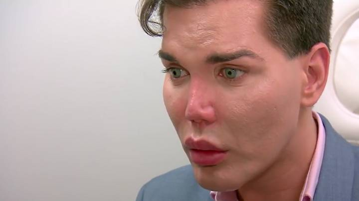 Doctor Warns 'Human Ken Doll' His Nose Could Fall Off