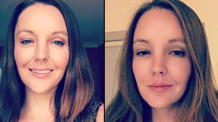 Woman Who Was Left Without A Forehead After Car Crash Warns Others Not To Rest Feet On Dashboard