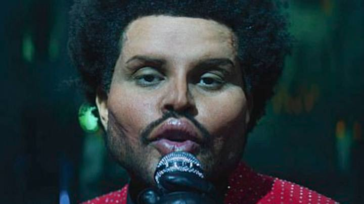 The Weeknd Uses Botox Prosthetics In Save Your Tears Music Video