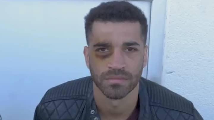 Boxer Sam Maxwell Gives Himself Black Eye During Live Stream Uppercut Demonstration