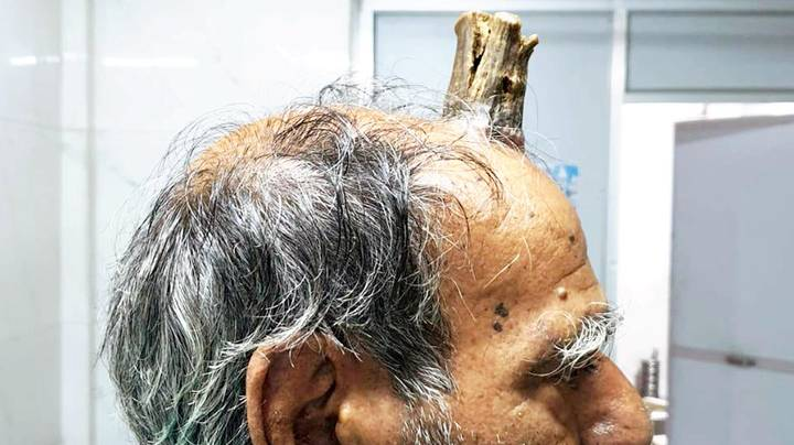 Surgeons Remove Four-Inch 'Devil Horn' From Farmer's Head