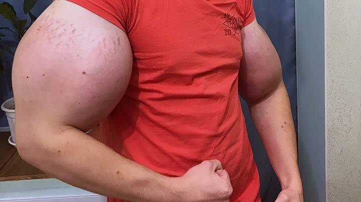 Man With Huge 'Popeye' Arms Could Lose Them, According To Doctors