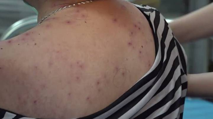 ​Woman Has To Have More Than 400 Bee Stings Removed From Body