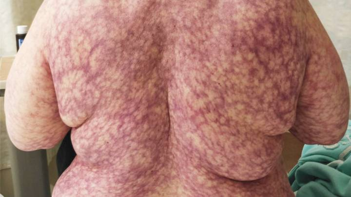 Woman Breaks Out In Web-Like Purple Rash Due To Cold Weather