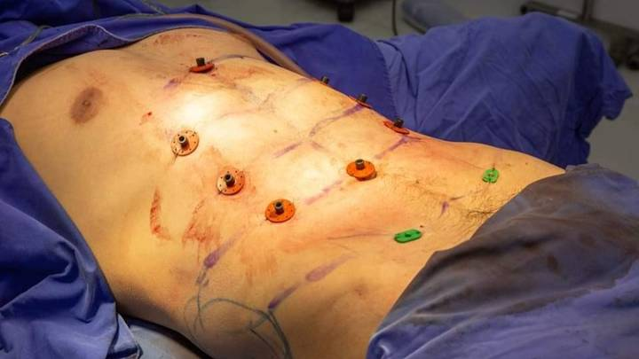 Instant Six Pack Surgery Is Now A Thing