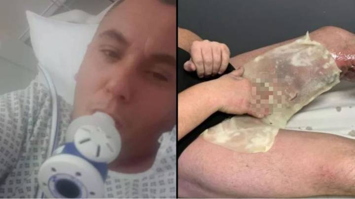 Man Almost Had His Balls Blown Off When E-Cig Exploded