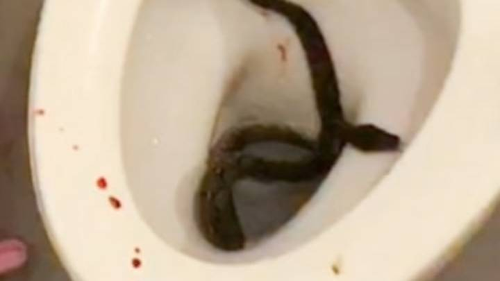 Huge Python Bit Teenager's Penis While He Was Sitting On The Loo