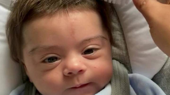 Premature Baby With Luscious Locks Due To Rare Condition Goes Viral