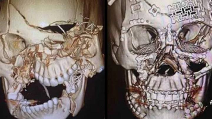 Doctor Shows Off Incredible Facial Reconstruction After Accident