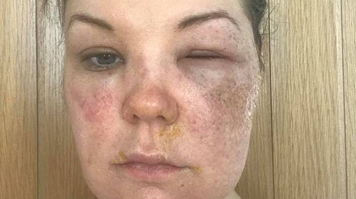 Mum Left With Burns To Face, Neck And Chest After Egg Poaching Hack