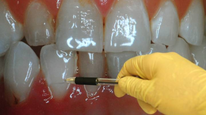 Top Dentist Reveals Common Bad Habits That Could Be Damaging Your Teeth