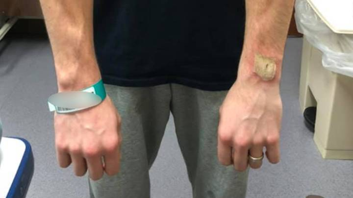 Man Claims He Was Left With Nasty Burn After Fitbit Started 'Burning And Smoking'