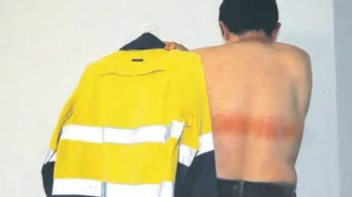 Workman Gets First-Degree Burns From Reflective Strip On His High-Vis Jacket