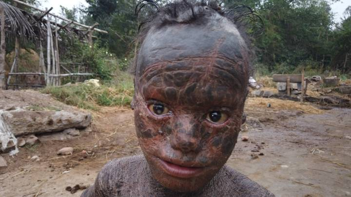 Ten-Year-Old Boy With Rare Condition Sheds His Skin Every Month