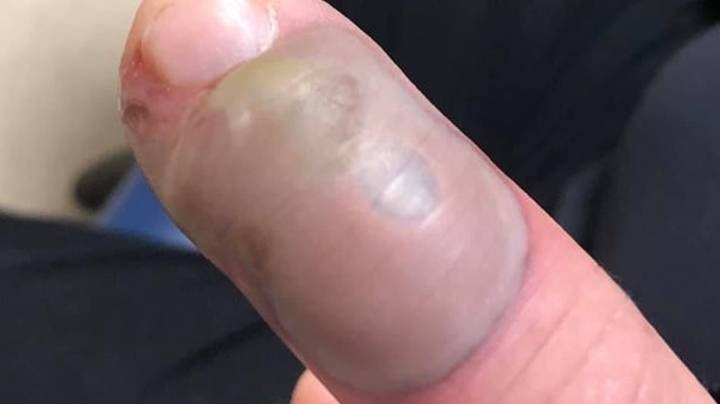 Woman Warns People Not To Bite Nails After Friend Gets Serious Infection