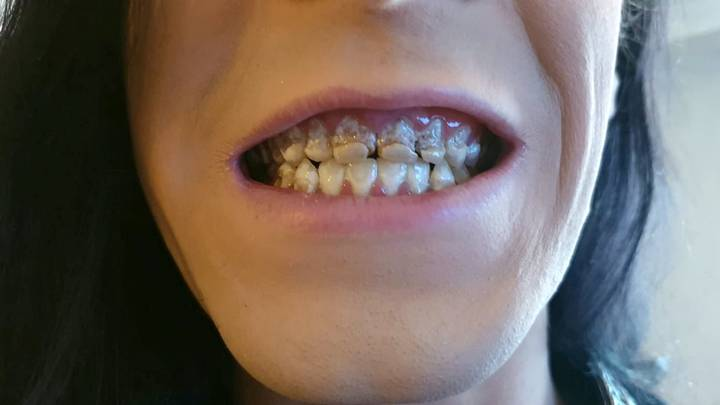 This Is The Damage Six Cans Of Energy Drink A Day Can Do To Your Teeth