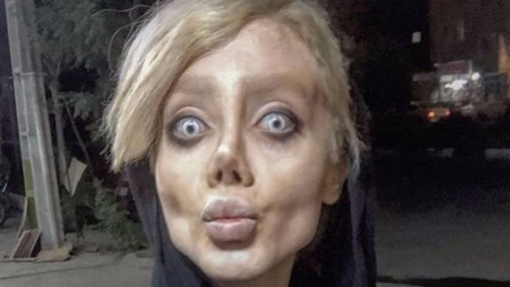 Young Woman Had Over 50 Operations To Look Like Angelina Jolie