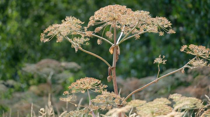 Five-Year-Old Girl Left With Severe Blisters After Brush With Giant Hogweed