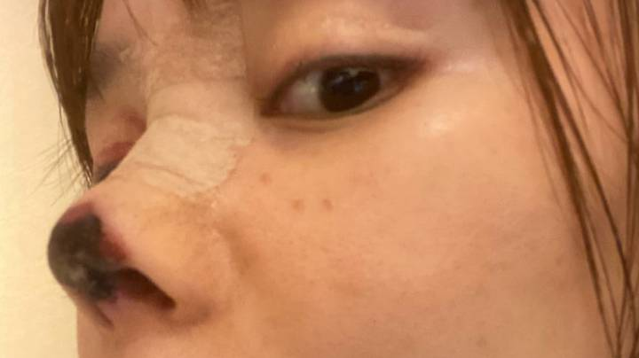 Woman Left With Black Rotting Nose After Operation Goes Wrong