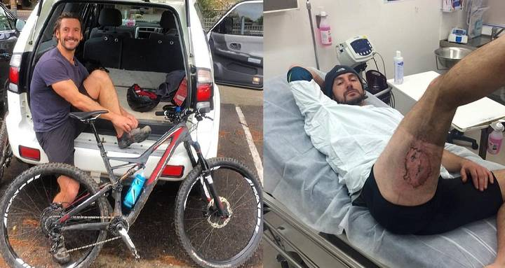 Mountain Biker Suffers Third-Degree Burns After iPhone Exploded In His Pocket