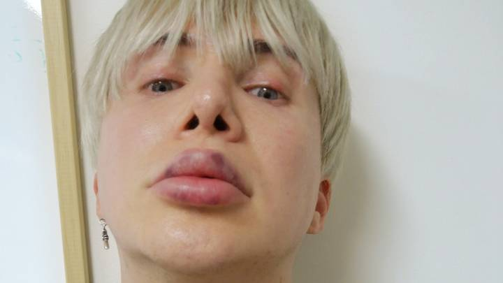 British K-Pop Star Unable To Sing Properly Because Of Cosmetic Lip Treatments