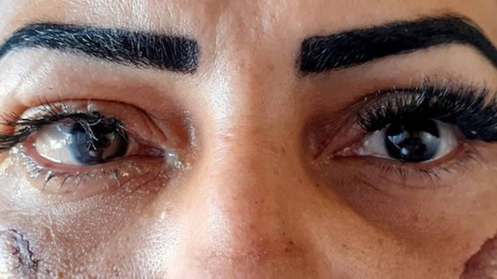 Woman Claims She Was Blinded In One Eye After False Eyelash Glue Accident