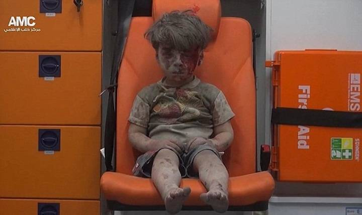This Image Of A Little Wounded Syrian Boy Needs To Be Seen By The World