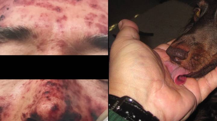 Pet Owners Warned After Man's Skin Started Rotting Because His Dog Licked Him