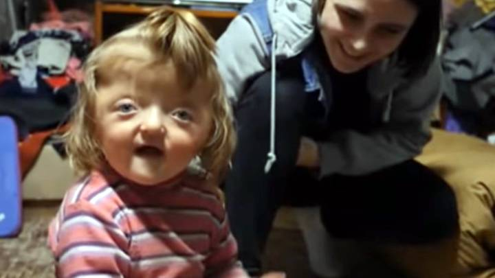 Disabled Girl Banned From Nursery Because 'Her Deformed Skull Will Scare Other Kids'