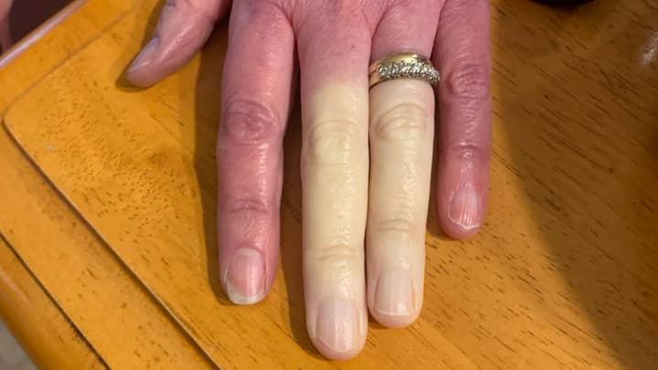 Mum's Fingers Turn Completely White Thanks To Rare Disorder