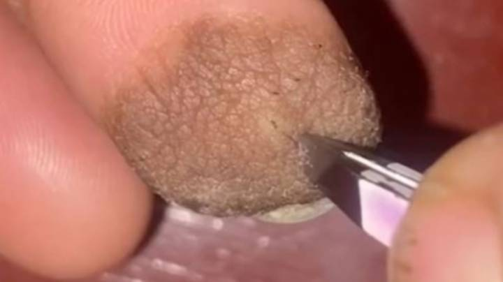 Woman Reveals Skin Graft Left Her With Pubes Growing Out Of Her Finger