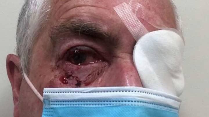 Elderly Aussie Man Narrowly Avoids Going Blind After Savage Magpie Attack