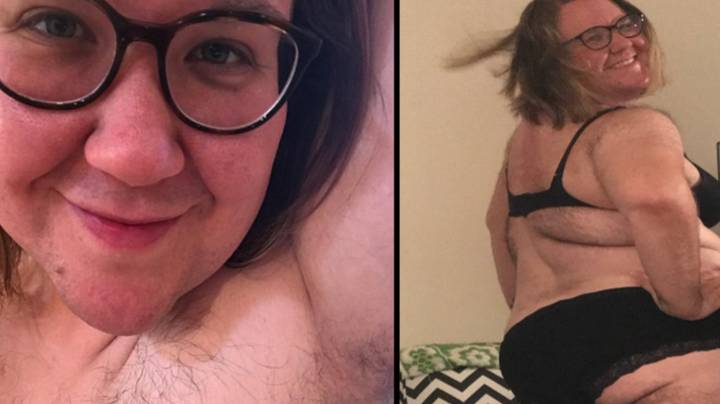 Brave PCOS Sufferer Decides To Ditch The Razor And Embrace Her Hairiness