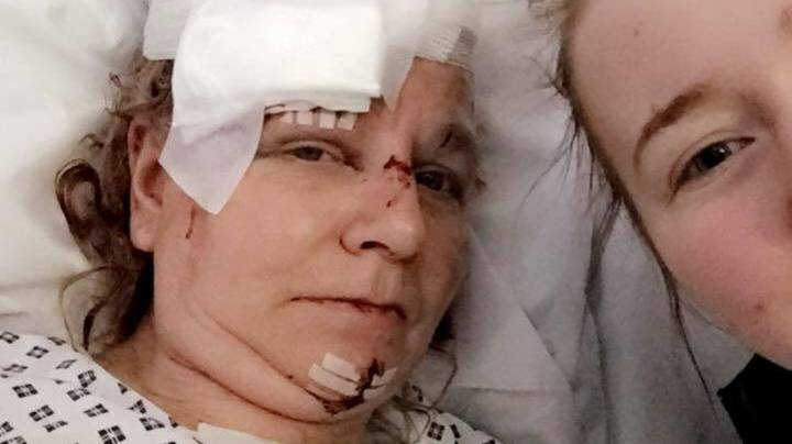 Teenager Who Bashed Woman's Head In Walks Free With £20 Fine