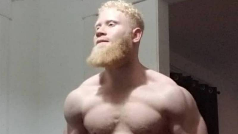 American Fitness Fanatic Claims To Be The 'Strongest Albino Alive'
