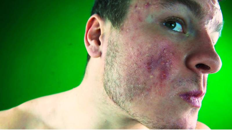 Bodybuilder With Acne Claims Giving Up Cheese Transformed His Skin