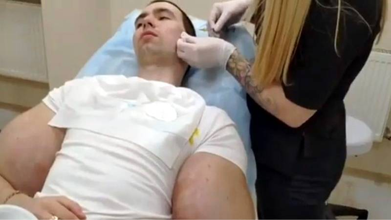 Russian Bodybuilder Dubbed Popeye Gets Injections In His Face