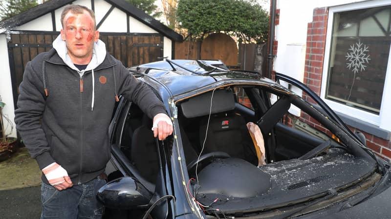 Driver Left With Horrific Burns After Spraying Air Freshener Then Lighting Cigarette In Car