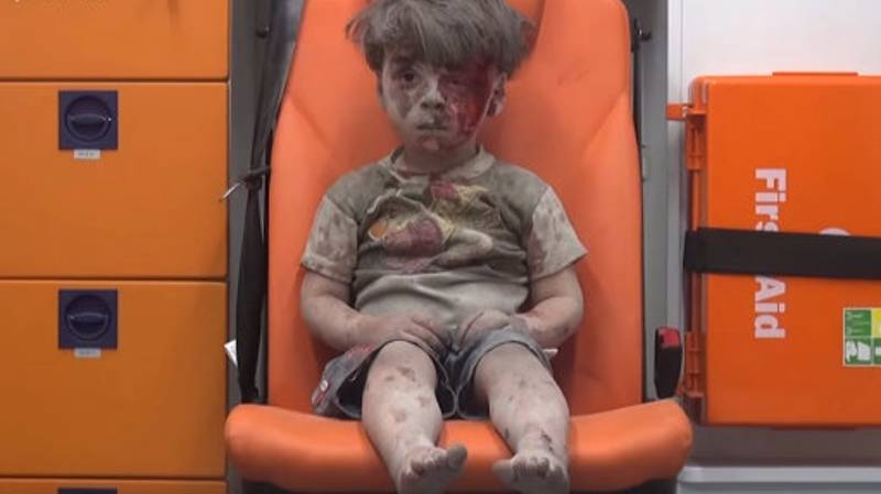 Aleppo Boy Who Became Symbol Of Stricken City Is Much Better Now