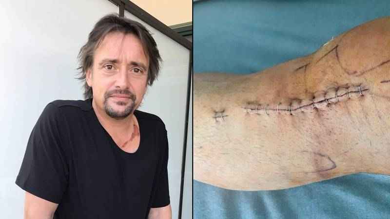 Richard Hammond Shows Off His X-Ray And Scars From 'The Grand Tour' Crash