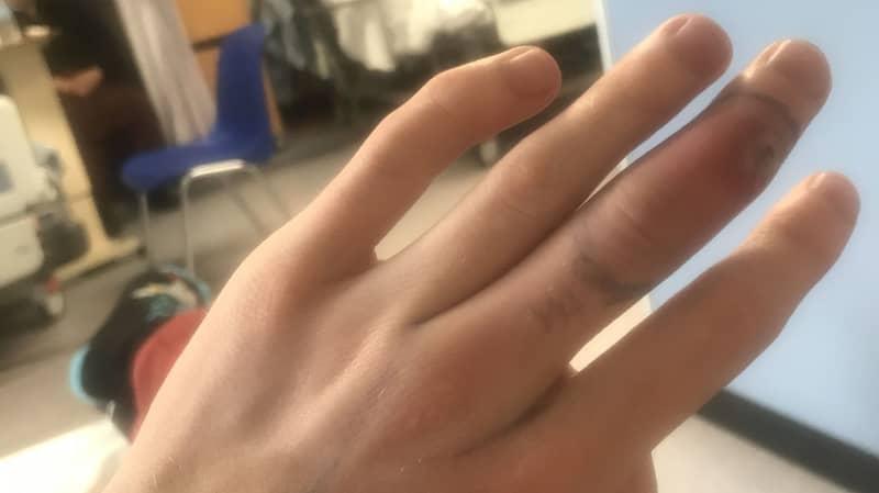Pet Shop Worker Bitten By False Widow Left With Sausage-Sized Finger