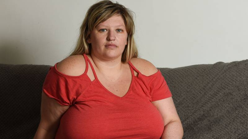 Woman Left In Wheelchair After Breasts Caused Spine To Collapse