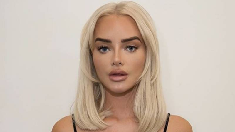 Instagram Influencer Wants Cut-Price Butt Lift Reversed, Saying It Looks 'Unnatural'