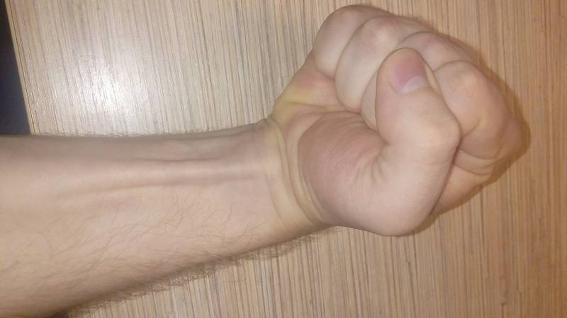 Around 15 Percent Of People Don't Have This Muscle In Their Arm