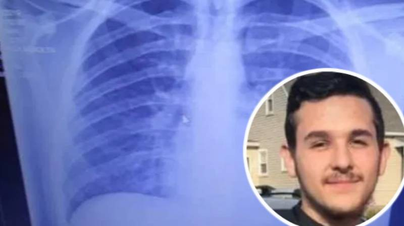 Shocking X-ray Shows Teen's Lungs Filled With 'Solidified Oil From Vaping'