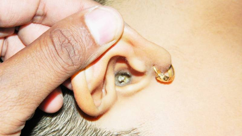 Can You Stomach This Video Of A Woman Getting Earwax Removed?